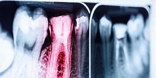 endodontie-praxis-scheuber-dr-maier